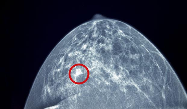 Diagnostic Mammogram